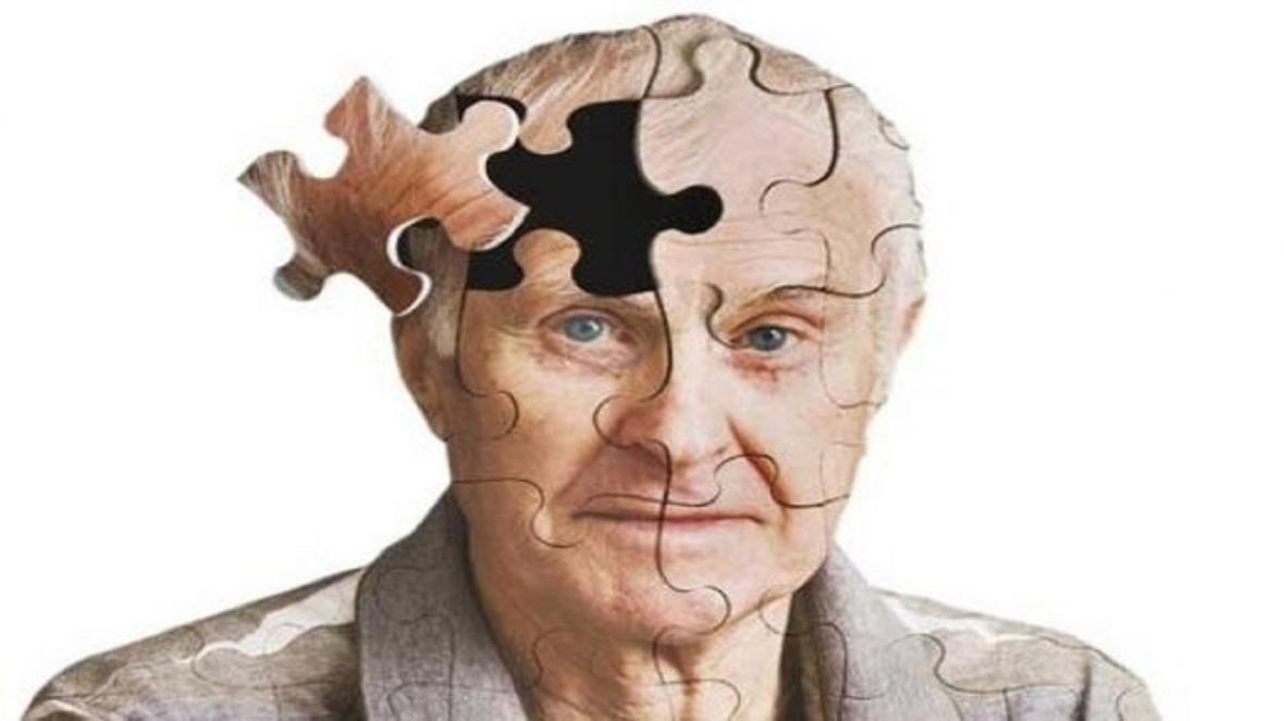 تکنیک هایی ساده برای درمان بیماری آلزایمر