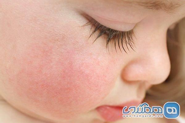 علل حساسیت به نور خورشید و کهیر زدن پوست زیر آفتاب