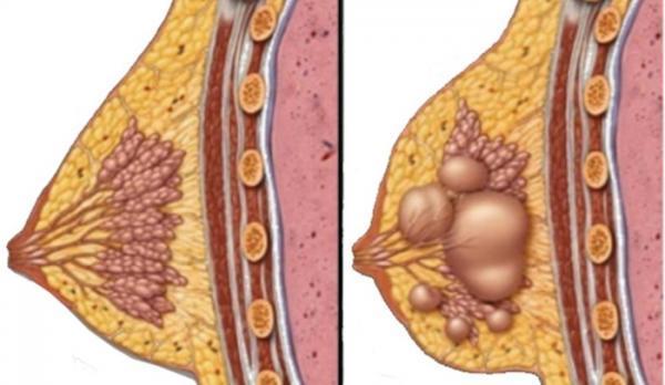 درمان کیست سینه چگونه انجام می شود؟